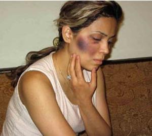 Tina Rad was beaten